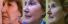 One the best treatment options for tightening the skin around the mouth, eyes and the chin areas offered by dermatologists at Texas institute of Dermatology
