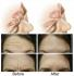 San Antonio Botox Clinic Offers Botox Dysport injections for forehead, around eyes, glabellar, 11s, neck.